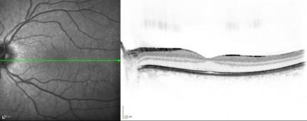 Schnitt durch die Fovea eines gesunden Auges