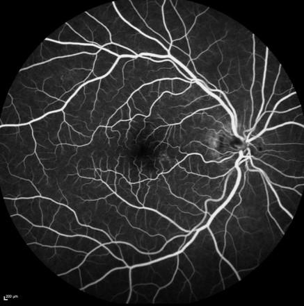 Aufnahme einer Farbstoffuntersuchung (Angiographie)